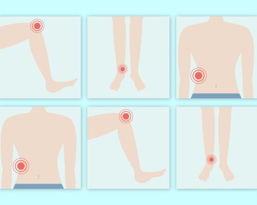 Stopa kolano biodro przyczyny bolu i metody zapobiegania